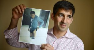 Attorney Anton L. Iamele holds a photo of his client, Immanuel Dunn, whose left leg had to be reconstructed after his heel and ankle were mangled. (The Daily Record/Maximilian Franz)