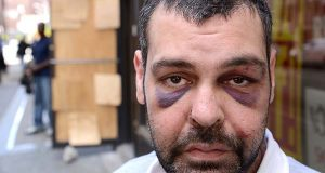 Egyptian native and Baltimore resident Alaa Mansour, was working part time at the Gold Apple Watch and Jewelry Repair on East Fayette street in Balimore with rioters caught him outside of the store when trying to leave on Monday around 5:30pm, beat him to the ground and stole $470 of his person. (The Daily Record/Maximilian Franz)